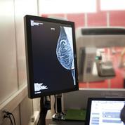 Cancer du sein: le dépistage se personnalise