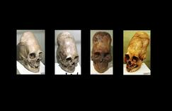 L'énigme des «crânes allongés» du Pérou résolue