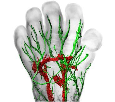 Distribution en 3 D des nerfs sensitifs (en vert) et moteurs (en rouge) dans la main d'un foetus à environ neuf semaines de gestation.© FONDATION VOIR ET ENTENDRE/INSTITUT DE LA VISION