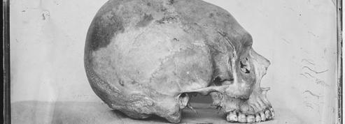 Des crânes «déformés» jusqu'au XIXe siècle dans la région de Toulouse