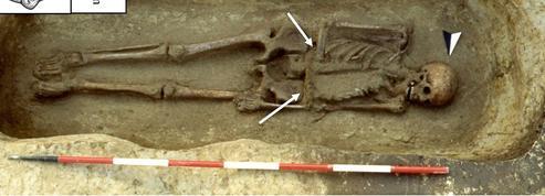 Au Moyen-Âge, un amputé avec un couteau à la place de l'avant bras