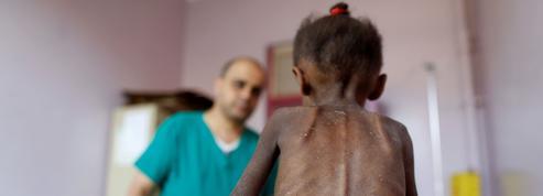 Yémen: la vie de 59 enfants hospitalisés à Hodeida menacée par les combats