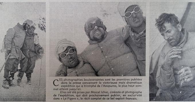 Photographies publiées dans Le Figaro du 21 juillet 1950 figurant le retour des alpinistes au camp 2 le 5 juillet 1950: Lionel Terray (à gauche) soutenu par un porteur népalais, Louis Lachenal (au centre) appuyé sur des sherpas et Maurice Herzog (à droite) les mains gélées par le froid.