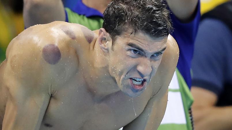 Pourquoi le corps de Michael Phelps est-il recouvert de pois rouges ?