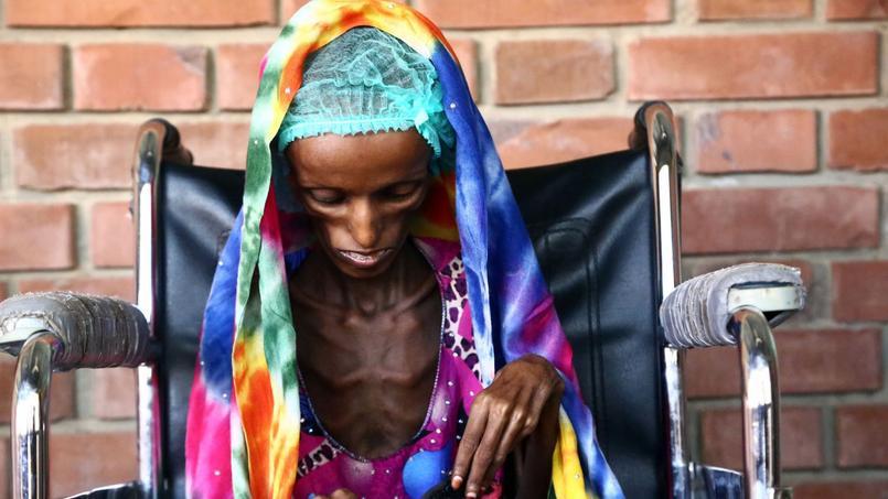 Saida Ahmad Baghili, jeune Yéménite de 18 ans souffrant de malnutrition, à Hodeida, le 25 octobre 2016.