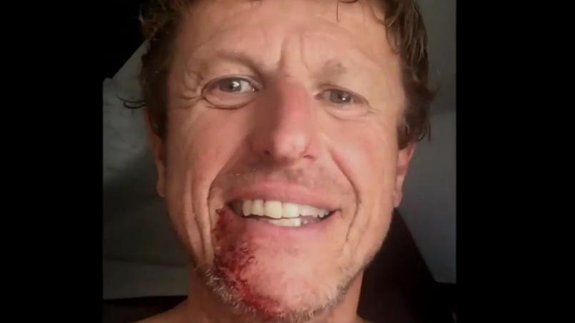 Vendée Globe : Jean-Pierre Dick se recoud le menton avec une agrafeuse