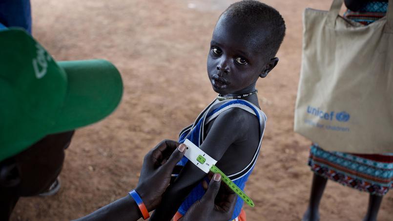 Le tour de bras de cet enfant sud-soudanais est mesuré au cours d'un examen nutritionnel, le 20 février. Le même jour, l'état de famine a été déclaré dans plusieurs zones du Soudan du sud.