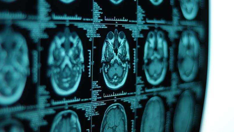 Radiographies d'un cerveau.