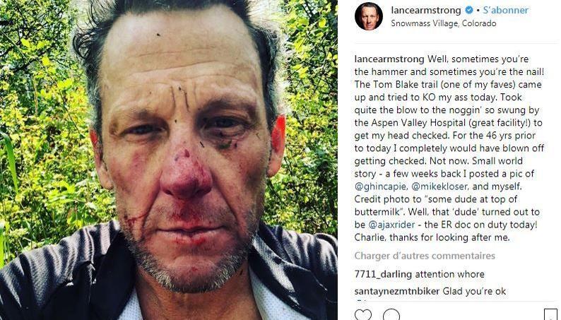 Lance Armstrong en sang après une grosse chute à vélo (photos)