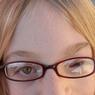 Pauline souffre du syndrome de Goldenhar, qui engendre une asymétrie du visage, des malformations auriculaires et oculaires, et des anomalies vertébrales.