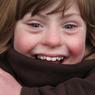 Très dynamique, Grace aime nager, faire du bateau à voile et monter à cheval. Elle prend également des cours de chant et de danse. Elle est atteinte de trisomie 21.