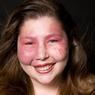 Sarah pratique la course de motocross. Elle est atteinte du syndrome Sturge Weber, une malformation vasculaire congénitale qui peut s'accompagner de troubles oculaires et neurologiques.