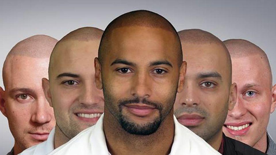 Comment eviter la perte des cheveux homme