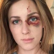 Le visage tuméfié de cette jeune Brésilienne devient un nouveau symbole des violences conjugales