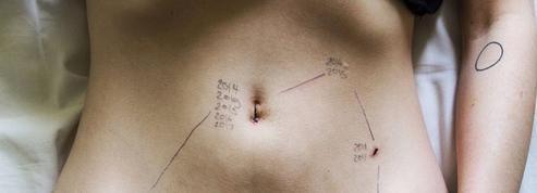 À Londres, une exposition montre la réalité de l'endométriose