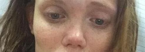 Le visage tuméfié, un mannequin russe dénonce les violences conjugales