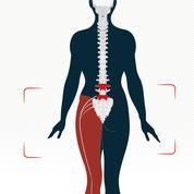 Sciatique, la très douloureuse compression d'un nerf