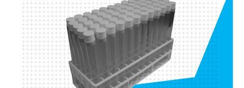 Covid-19 : découvrez le niveau de circulation du virus dans votre ville grâce aux eaux usées