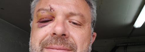 Le maire d'une petite commune de la Somme violemment frappé au visage lors du bal du 14 juillet