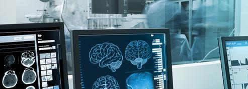 Maladie d'Alzheimer, démences : ces signes précoces qui doivent alerter