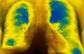 Mucoviscidose: l'annulation d'essais cliniques suscite l'inquiétude des associations de patients