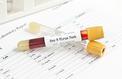 300 millions de personnes ont l'hépatite B mais seuls 5% reçoivent un traitement
