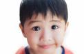 Strabisme: il est impératif d'intervenir avant l'âge de 3 ans