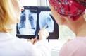 Les femmes semblent plus vulnérables que les hommes au cancer du poumon