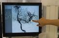 AVC : les risques d'aggravation des hémorragies cérébrales mieux évalués