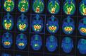 France 5 décrypte le mystère Alzheimer