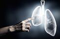 Transplantation: nouvel avenir pour la greffe de poumons