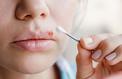 Bouton de fièvre: pourquoi il est impossible de se débarrasser de son herpès labial