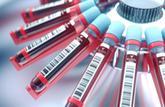 Analyses sanguines : la vitesse de sédimentation