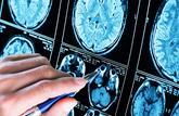 Épilepsies : un cerveau virtuel pour une première mondiale