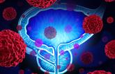 Un nouveau traitement contre le cancer de la prostate
