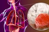 Cancer : les tumeurs de l'œsophage en hausse