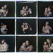 Zika : des bébés développent des malformations cérébrales après la naissance