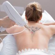 Quels sont les usages dermatologiquesdu laser ?