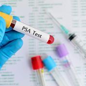 Le dépistage par PSA réduit bien la mortalité par cancer de la prostate