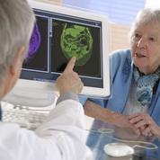 Alzheimer dépisté dans sa phase invisible