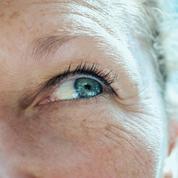 DMLA: les promesses des traitements à base de cellules souches