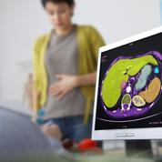 Fibrome utérin: le médicament Esmya a provoqué 51 cas d'insuffisance hépatique