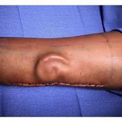 Une militaire américaine greffée d'une oreille reconstituée dans son avant-bras