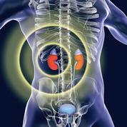 Cancer du rein : l'ablation n'est plus indispensable