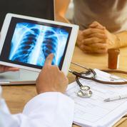 Cancer du poumon: une application améliore la survie des malades