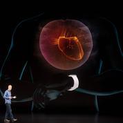 L'électrocardiogramme par l'Apple Watch: peut-être efficace, mais pas forcément utile