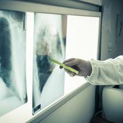 Une femme meurt d'un cancer après avoir reçu les poumons d'une fumeuse