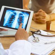 Fumeurs ou anciens fumeurs, que reste-t-il de vos poumons?