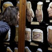 Musée des moulages, une plongée dans la médecine du XIXe siècle