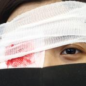 «Œil pour œil»: les manifestants de Hongkong dénoncent les violences policières